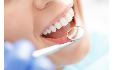 54% Rabatt auf Office Zahnbleaching